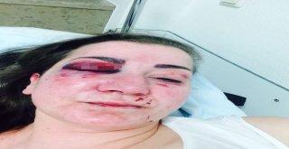 Almanyanın Köln Şehrinde Türk Kadına Yumruklu Saldırı